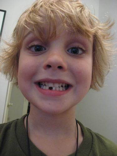Sam's first lost tooth smile